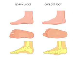 一般足部與糖尿病足部