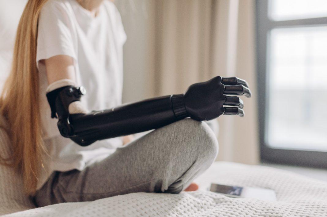 手臂末端義肢種類除了人造手還有彎鉤、鉗形器。